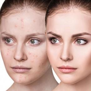 Akne ravi laseriga